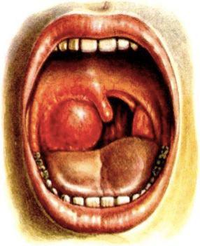Флегмонозная ангина: симптомы и лечение