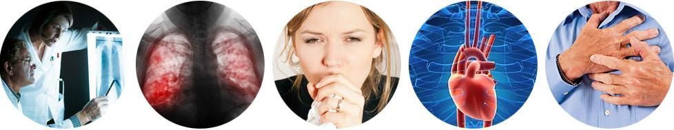 Последствия и осложнения ангины