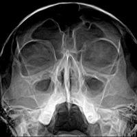 Рентгеновский снимок черепа и пазух