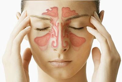 Синусит: симптомы и лечение у взрослых и детей