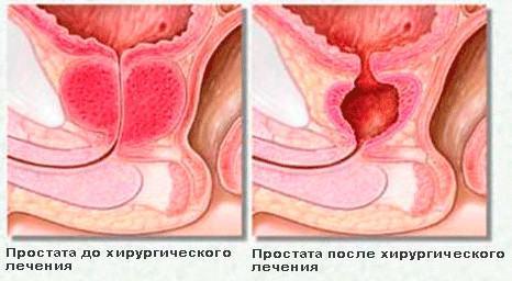 Предстательная железа после операции