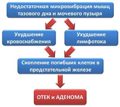 Схема развития аденомы простаты
