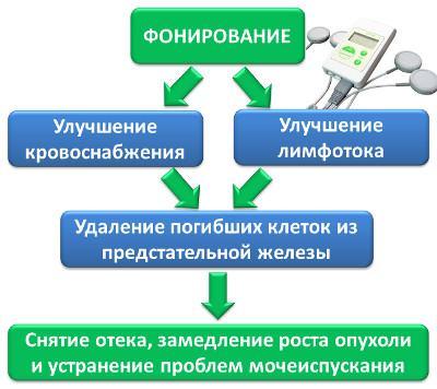 Фонирование - эффективное средство лечения аденомы простаты без лекарств и операции