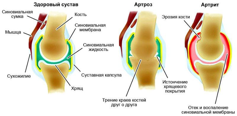 Артрит и артроз - отличие