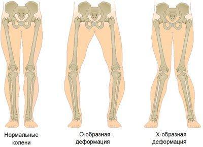 Деформирующий артроз: «x» или «o» деформация в суставах