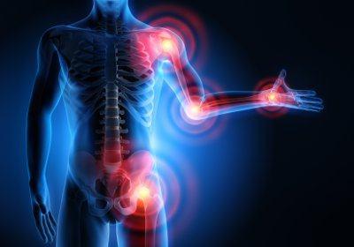 Эффективные лекарства от артрозов и артритов