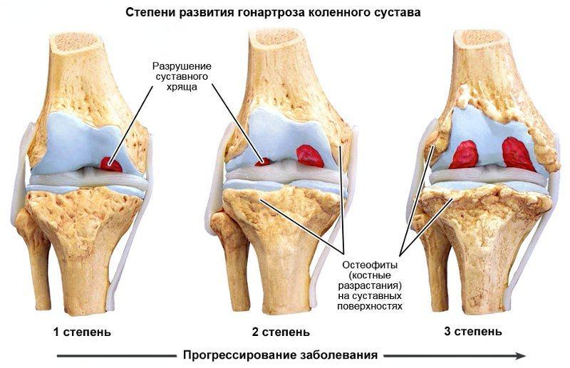 Степени развития артроза сустава