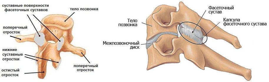 Фасеточный синдром - распространенная причина болей в спине
