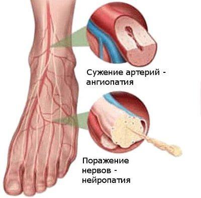 Диабетическая ангиопатия нижних конечностей и диабетическая нейропатия