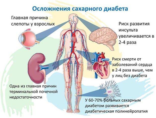 Синдром поздних осложнений сахарного диабета