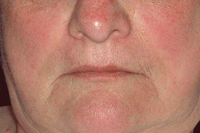Покраснение кожи в области подбородка и скул (диабетический рубеоз кожи)