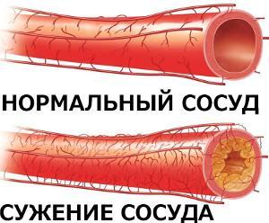 Сужение сосудов - ухудшение питания мозга - повышение давления