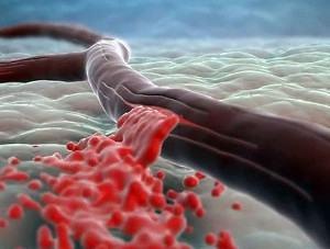 Сосуды становятся жесткие и хрупкие - высокий риск кровоизлияния