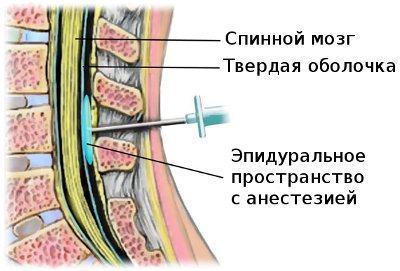 Эпидуральная блокада - временное обезболивание, но не устранение причины заболевания!