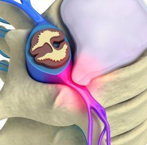 Эффективное лечение межпозвонковой грыжи