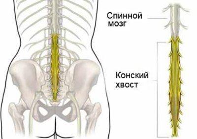 Синдром конского хвоста - сдавление пучка нервных волокон