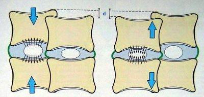 Изменения, происходящие в пульпозном ядре при нагрузке