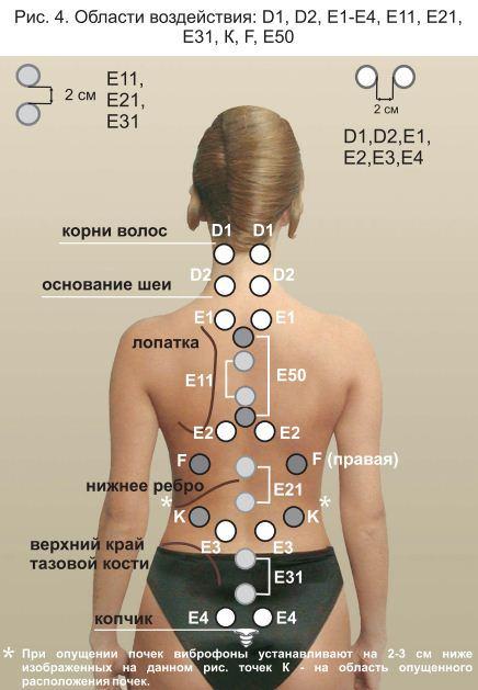 Фонирование - эффективный нехирургический метод лечения