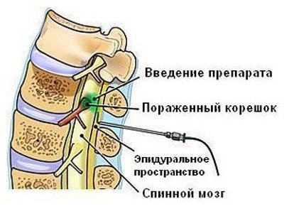 Эпидуpальная блокада - обезболивание всего на несколько суток