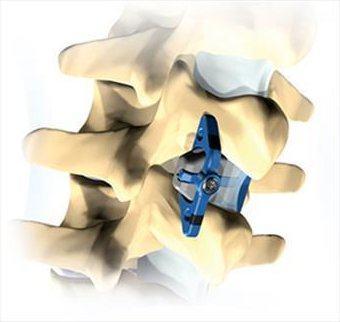 Операции при остеохондрозе - имплант