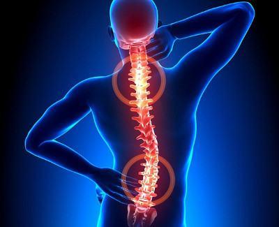 Грудной остеохондроз лечение в домашних условиях (видео)