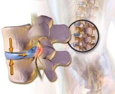 Радикулит (радикулопатия) - грыжа и корешковый синдром