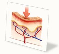 Давление (сдавливание) тканей