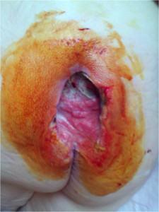Язва имеет большую глубину, в ней могут быть видны сухожилия и кости (фото)